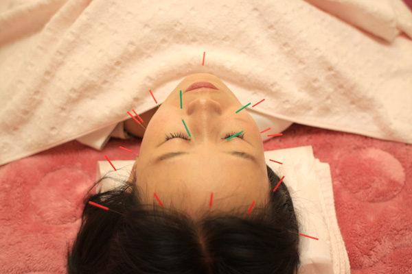 鹿児島の美容鍼