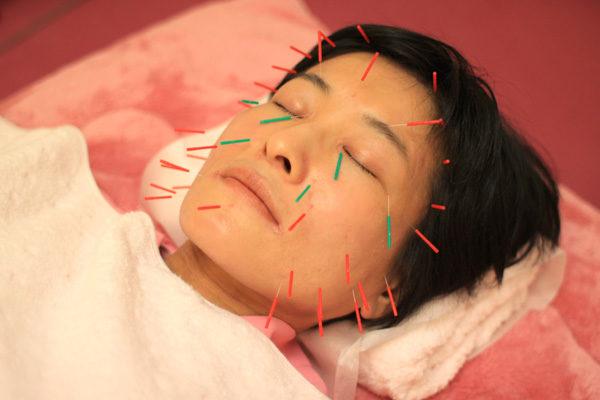 美容鍼灸は、にきび・しみ・しわにも効果