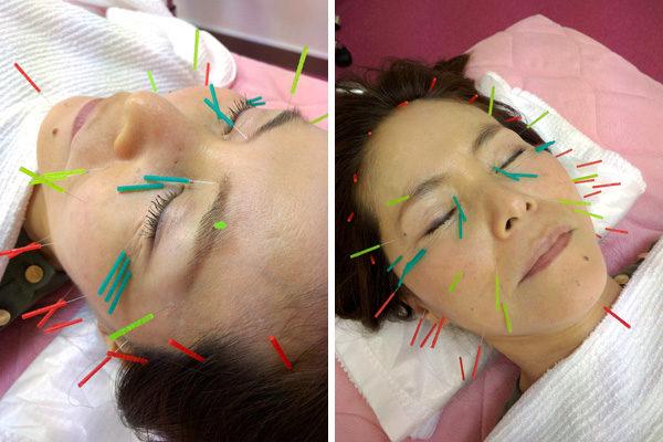 美容鍼目じりほうれい線に効果
