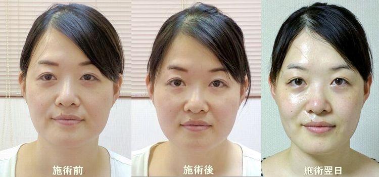 美容鍼の事後効果(遅延効果)