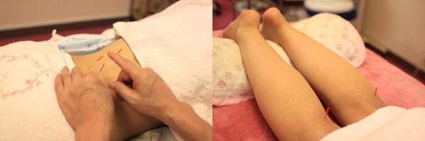 鹿児島鍼灸院の腰痛治療