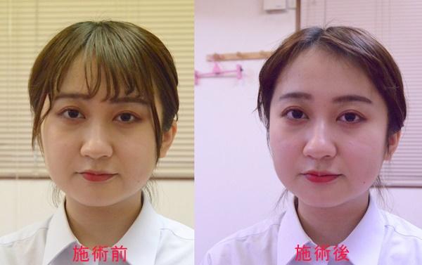 美容鍼 施術前後